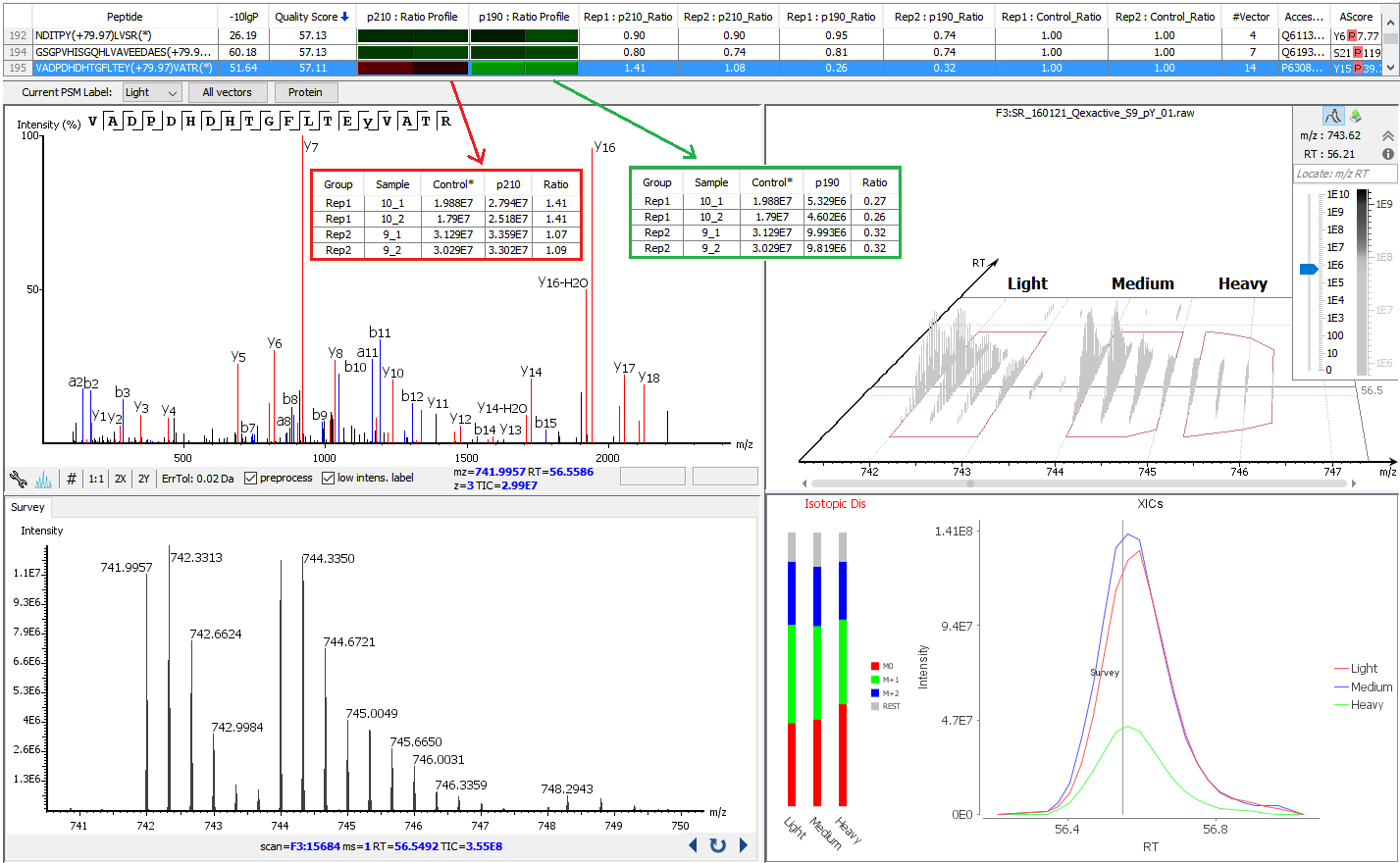 Qualitative Metabolome Analysis of Human Cerebrospinal